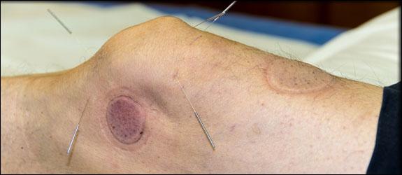 symptomatic knee osteoarthritis