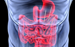 acupuncture in treating gastroesophageal reflux